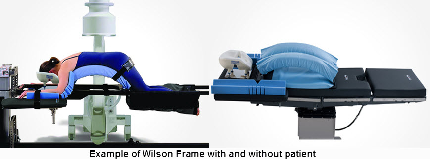 soft head pillow m9504 11 in x 9 in x 7 in with trach hole laminectomy arm cradles m10 319 5 in x 24 in x 3 in with trough 1 pair - Wilson Frame