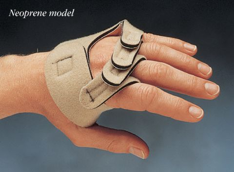 Hand Contracture | Hand Splints | Discounts | Orthosis | Ulnar