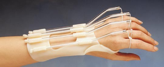 Manual on Static Hand Splinting : New Materials and Techniques