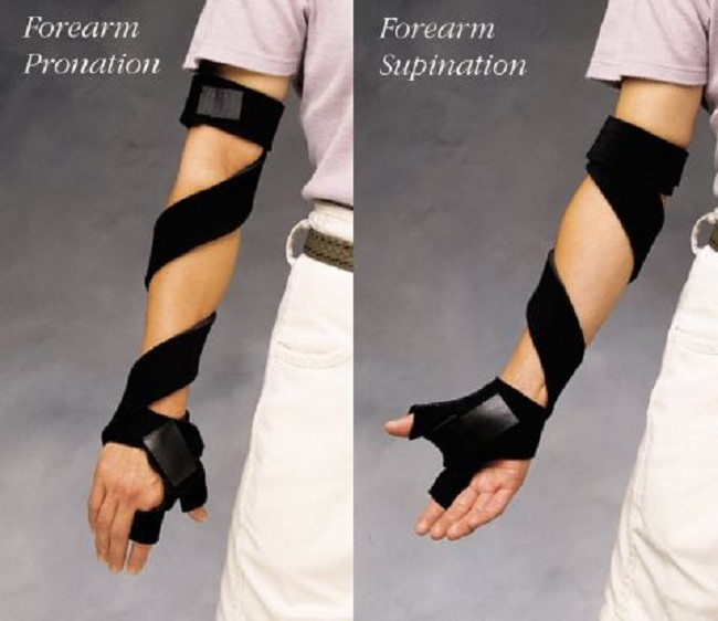 Comfort Cool Spiral Arm Splint