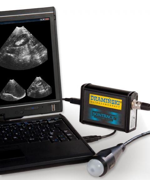 portable sonogram machine cost
