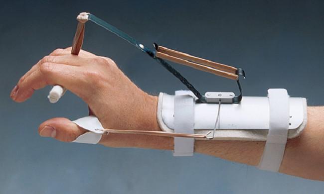 Bunnell Thomas Suspension Splint