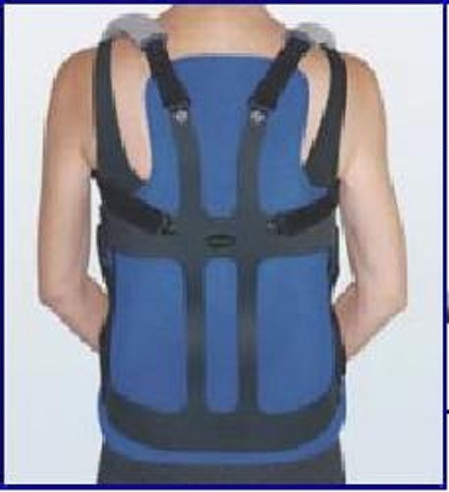 Thoracic Lumbar Sacral Orthosis with Zero Degree Lordosis Curve